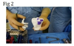 chirurgie du genou